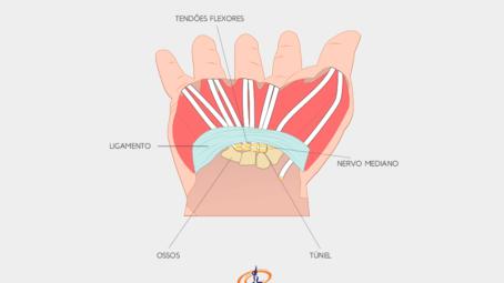 ilustração mostra o punho, indicando onde fica o ligamento, o nervo mediano, os ossos, os tendões flexores e o túnel do carpo