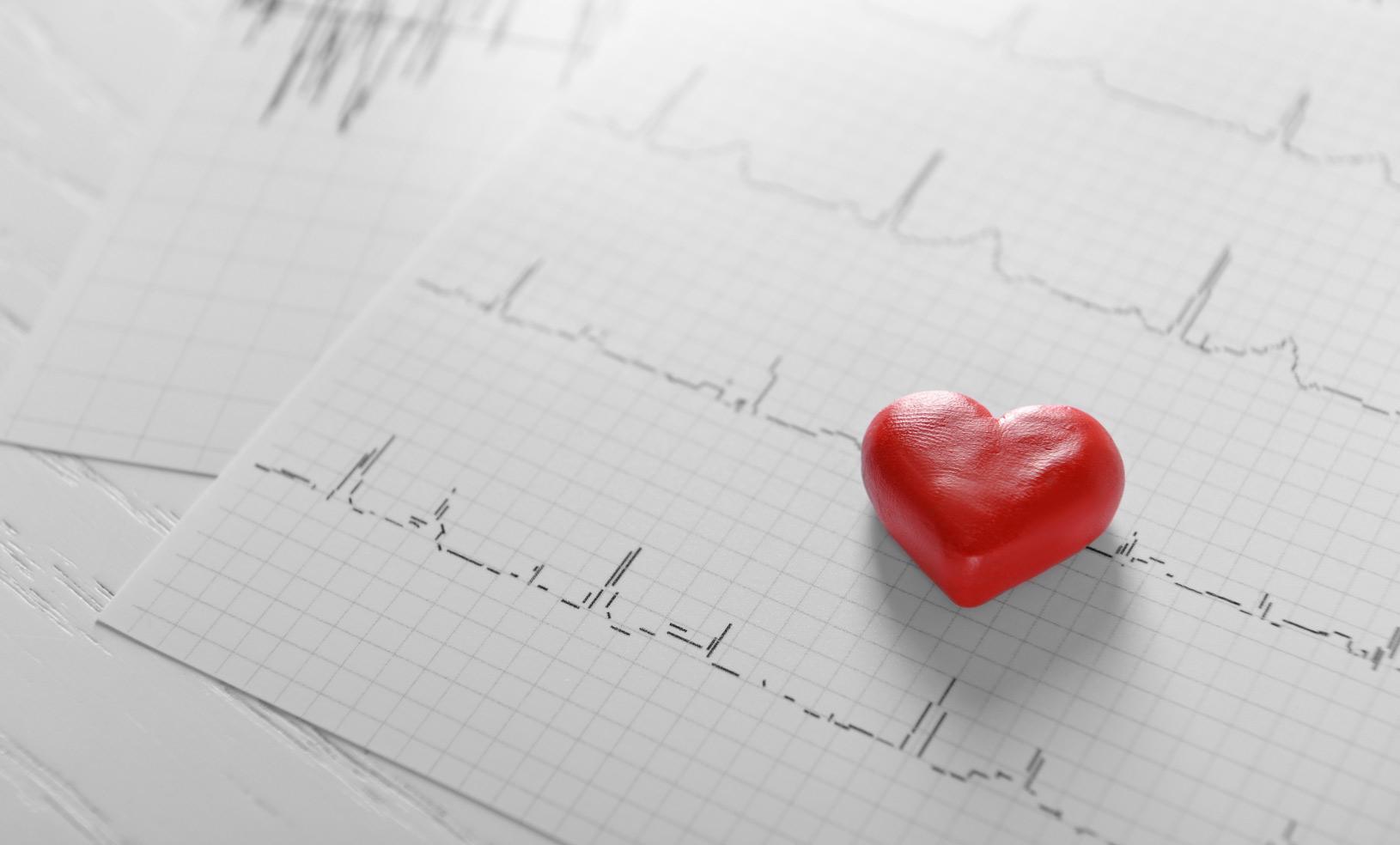 Atividade física é fundamental para reabilitação cardíaca | Atitude CRAFT |  Alto da Lapa | São Paulo